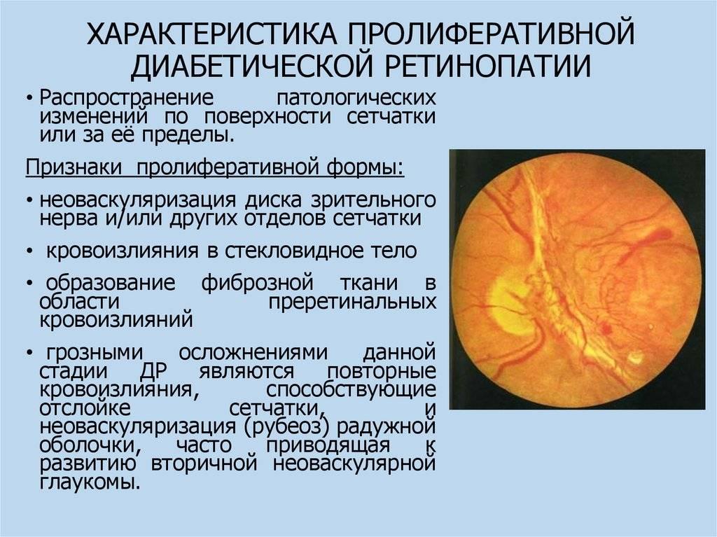 Фоновая ретинопатия: симптомы ретинальных сосудистых изменений