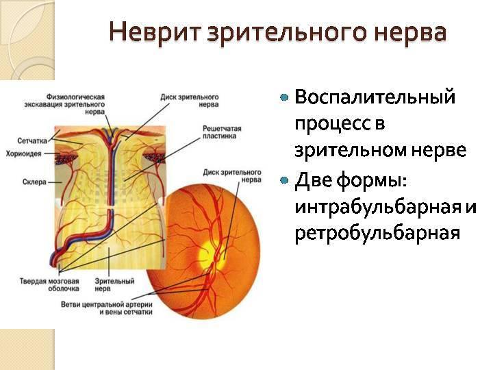 Неврит зрительного нерва: симптомы, особенности, профилактика