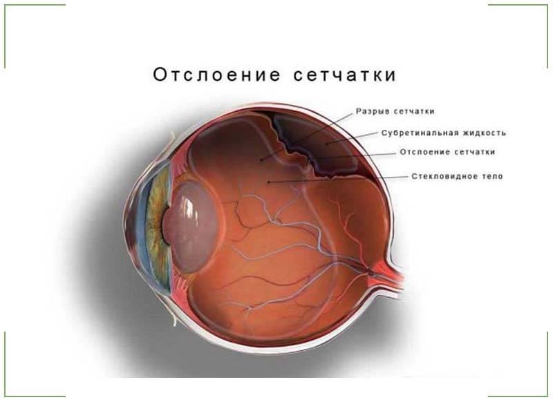 Отслойка сетчатки: симптомы на ранних сроках, стадии отслоения