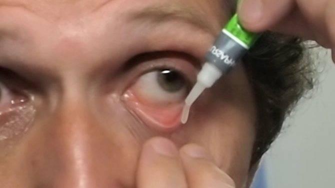 Как правильно закладывать мазь в глаза лечение глаз