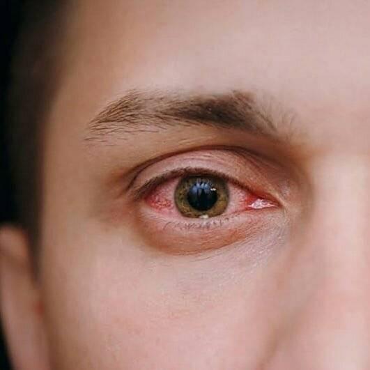Ощущение песка в глазах: причины и лечение oculistic.ru ощущение песка в глазах: причины и лечение