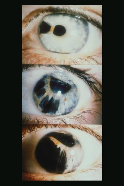 """Эндотелиальная дистрофия роговицы глаза - """"здоровое око"""""""