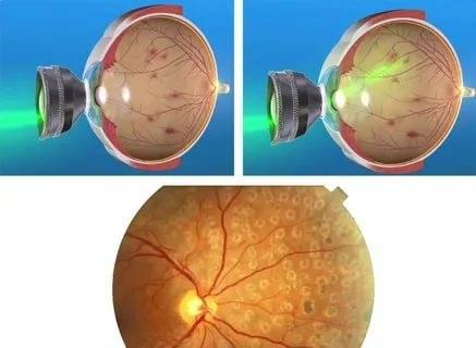 Витамины для сетчатки глаза: основные виды, особенности приема, рейтинг препаратов