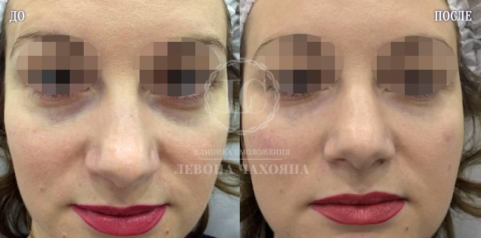 Бадяга от синяков под глазами: инструкция по применению и отзывы | moninomama.ru