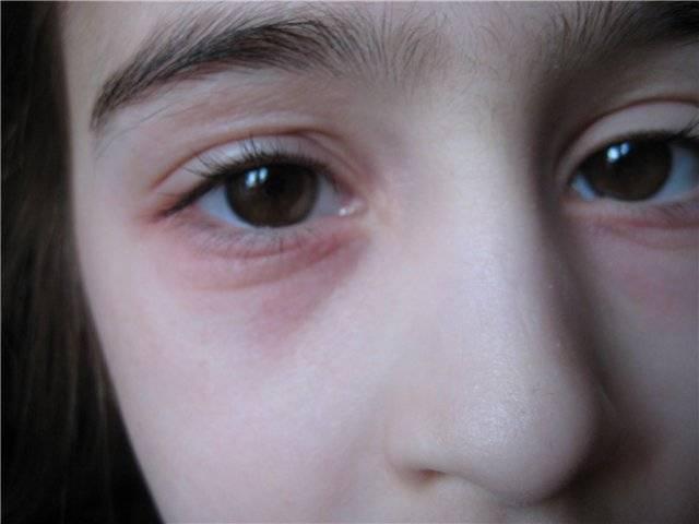 У ребенка опухло верхнее веко и покраснело (или нижнее, припух или отек глаз): что делать и о чем говорят эти симптомы?