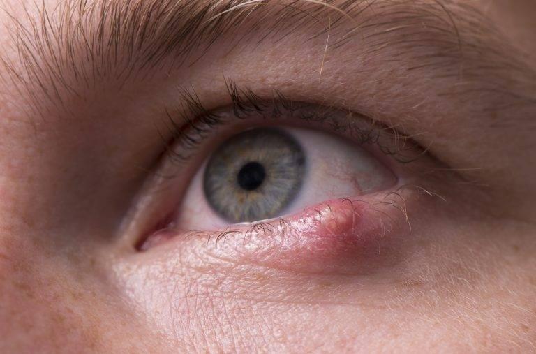 Простуда на глазу - как лечить, симптомы, фото