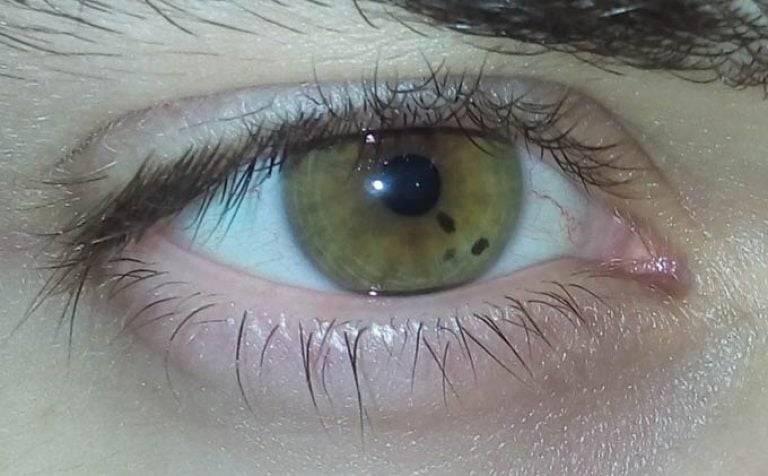 Мушки перед глазами: причины и лечение черных точек, плавающих темных пятен, линий, мелькающих червячков, ниточек, профилактика