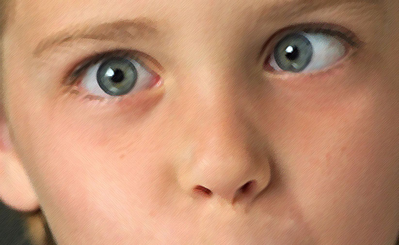Косоглазие — причины, симптомы и лечение — prozreniye.ru