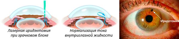 Лазерная иридэктомия: что это, послеоперационный период при глаукоме, отзывы