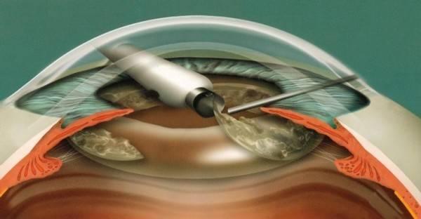 Современные виды операций при катаракте – показания для удаления катаракты