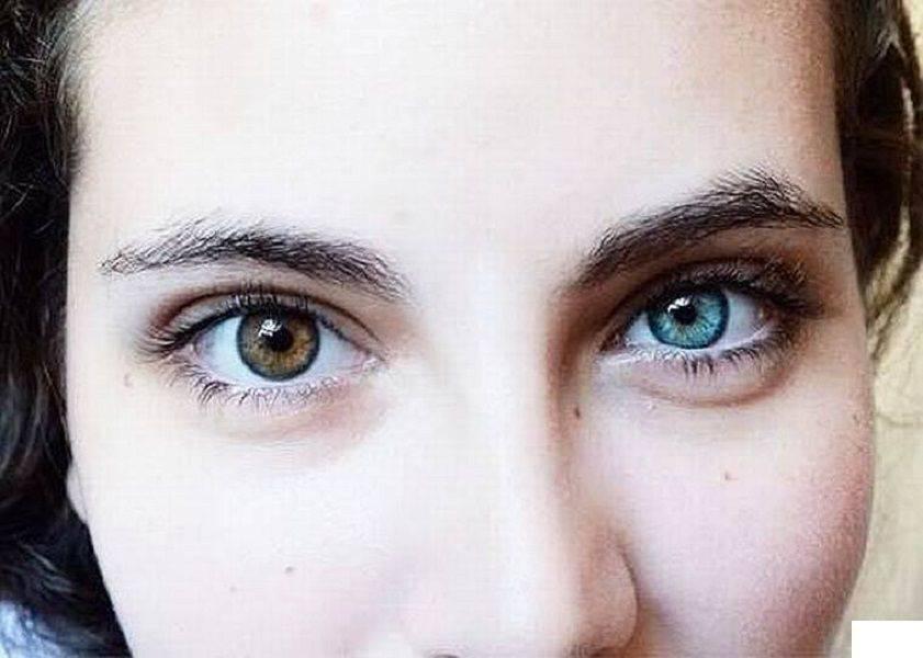Глаза разных цветов и разного размера: почему, как называется, что значит | компетентно о здоровье на ilive