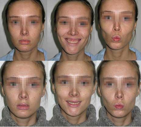 Асимметрия лица: причины и отличия от нормы
