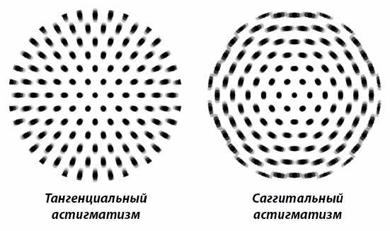 Тест на астигматизм в домашних условиях - как проверить