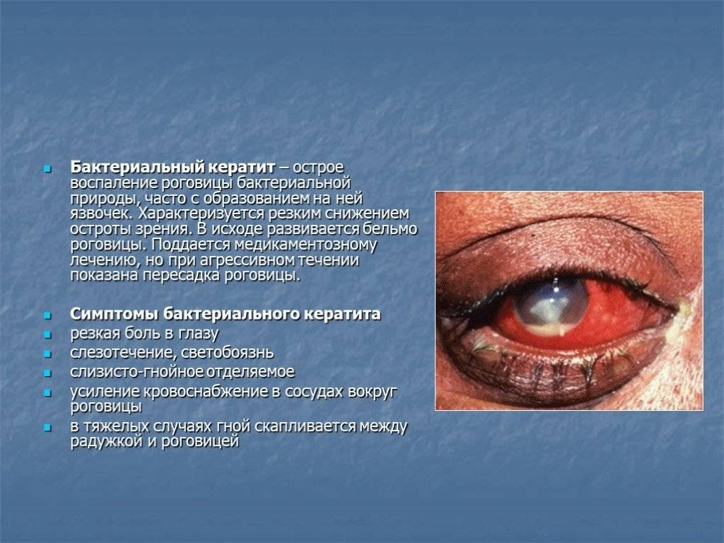 """Помутнение роговицы: симптомы и лечение - """"здоровое око"""""""
