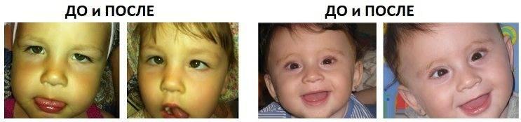 Операция по исправлению косоглазия: как делают, период восстановления у детей и взрослых, что нельзя делать после радиоволнового исправления