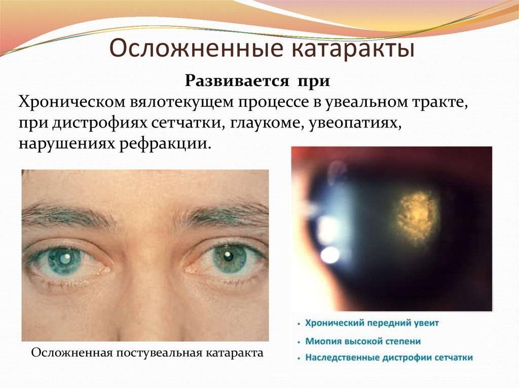 Как сохранить зрение: почему развивается начальная катаракта и как ее предотвратить