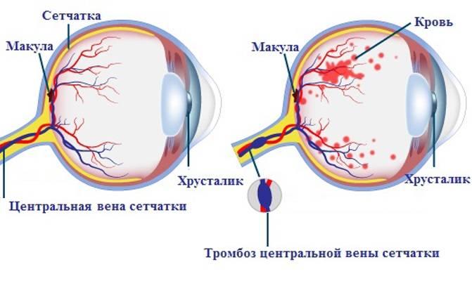 Тромбоз центральной вены сетчатки глаза: лечение и симптомы