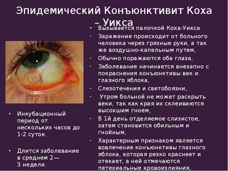 Названия и симптомы глазных болезней у людей