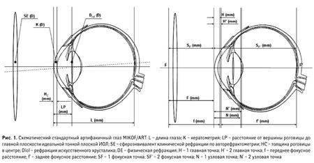 Для чего проводят кератометрию глаз