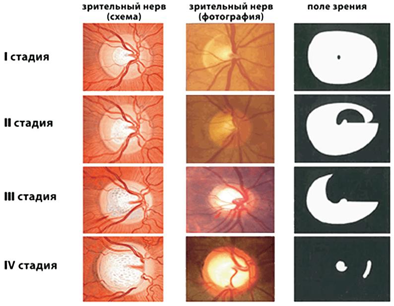 Открытоугольная глаукома 1 степени: виды, причины, симптомы, диагностика, лечение