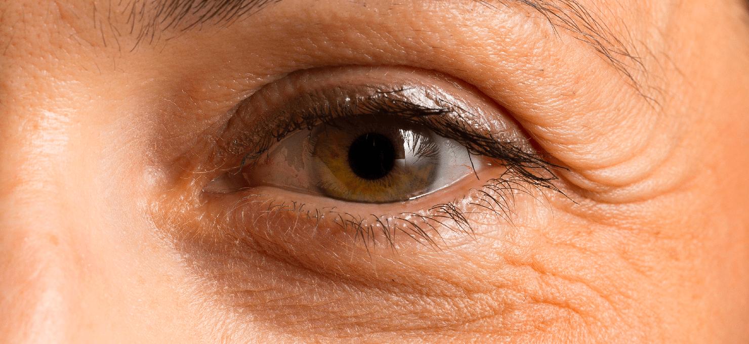 Желтые круги под глазами