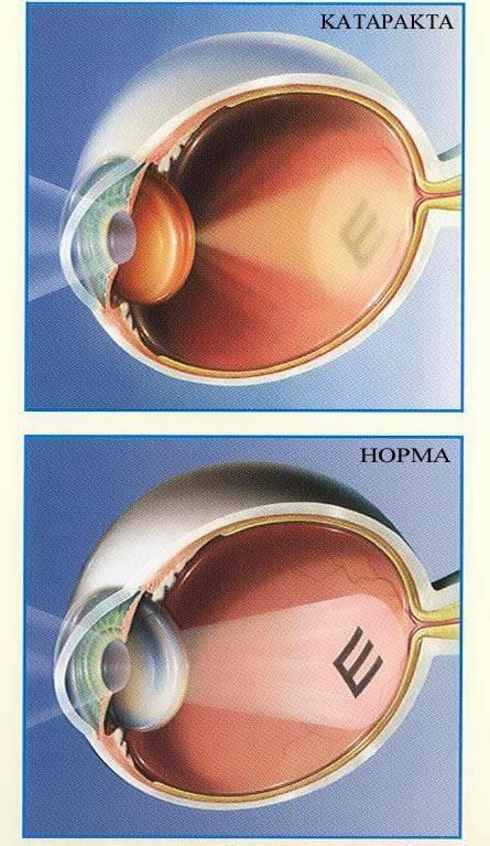 После родов упало зрение – причины, лечение - мир здоровья