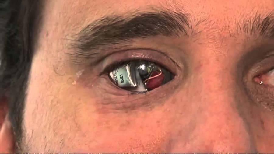 Что видят слепые люди? (7 фото) — нло мир интернет — журнал об нло