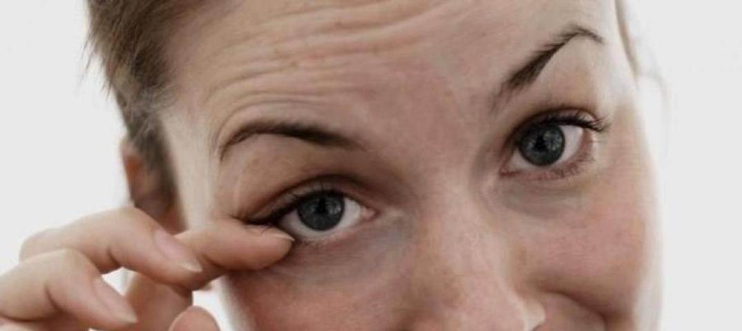 Как избавиться от нервного тика глаз в домашних условиях