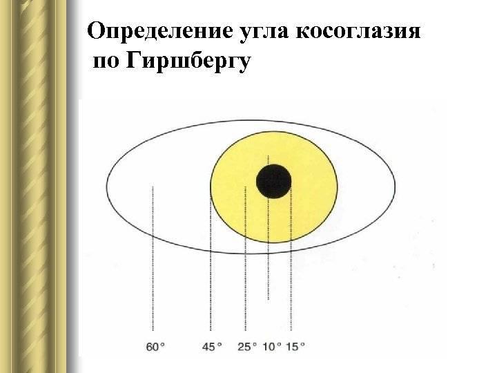 Угол косоглазия: измерение по гиршбергу, показания, измерения, результаты oculistic.ru угол косоглазия: измерение по гиршбергу, показания, измерения, результаты