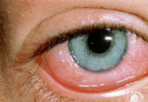 Субконъюнктивальное кровоизлияние (гипосфагма): причины, симптомы и профилактика патологии