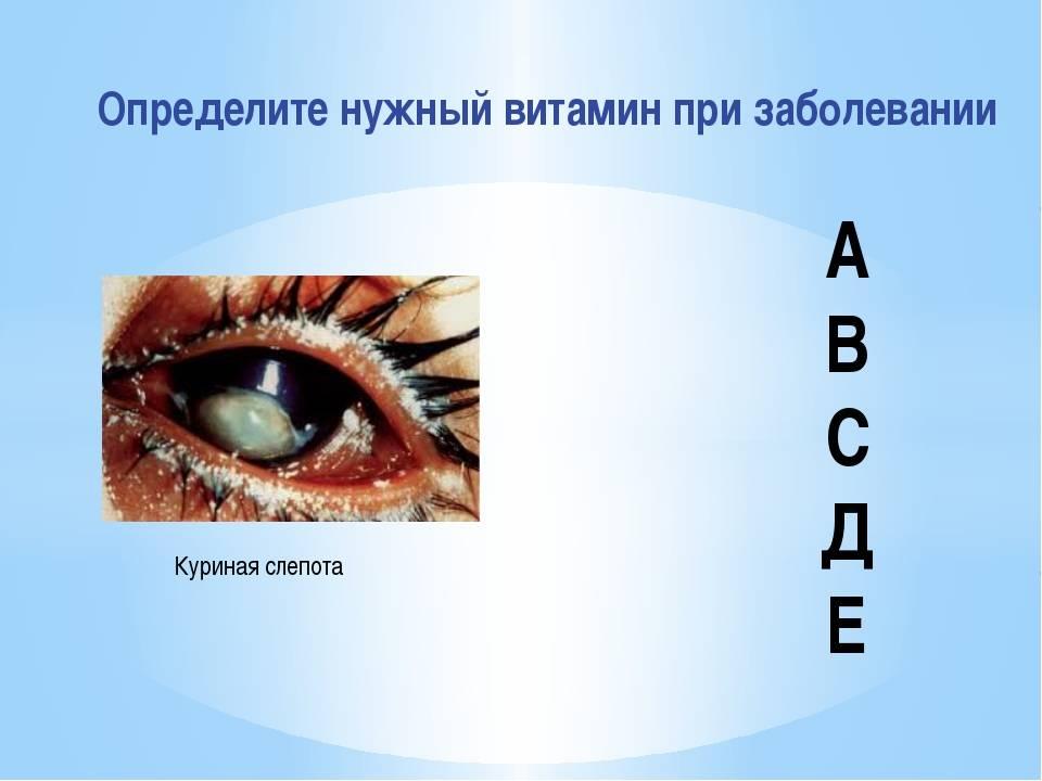 Гемералопия (куриная слепота): лечение, причины, симптомы, диагностика и осложнения