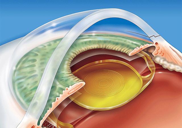 Сосудистая оболочка глаза: строение, функции, симптомы и лечение