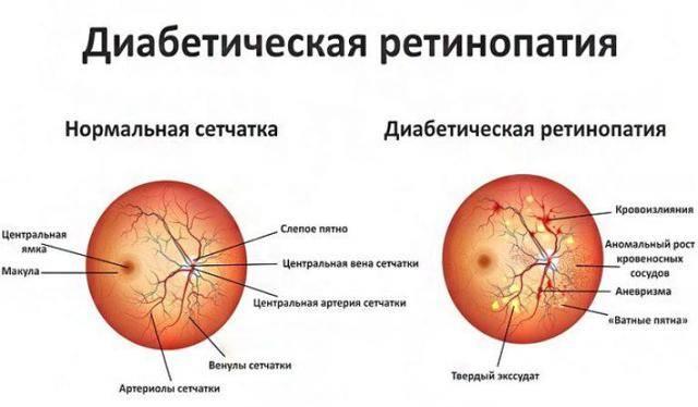 Фоновая ретинопатия и ретинальные сосудистые изменения - лечение фоновой ретинопатии у детей | медицинский портал spacehealth