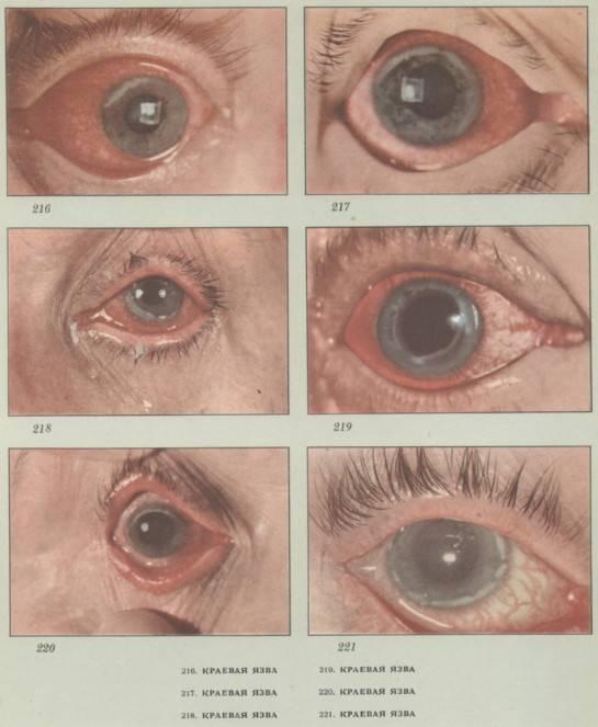 Герпетический кератит глаз: симптомы, диагностика, лечение и профилактика