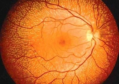 Разновидности, причины, симптомы и лечение ретинопатии сетчатки глаза
