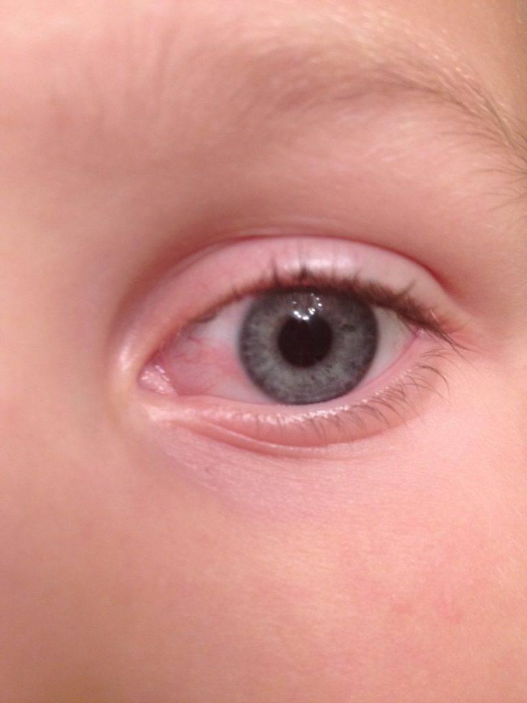 Покраснел глаз у грудничка: причины, после родов, лечение грудного новорожденного ребенка, капли