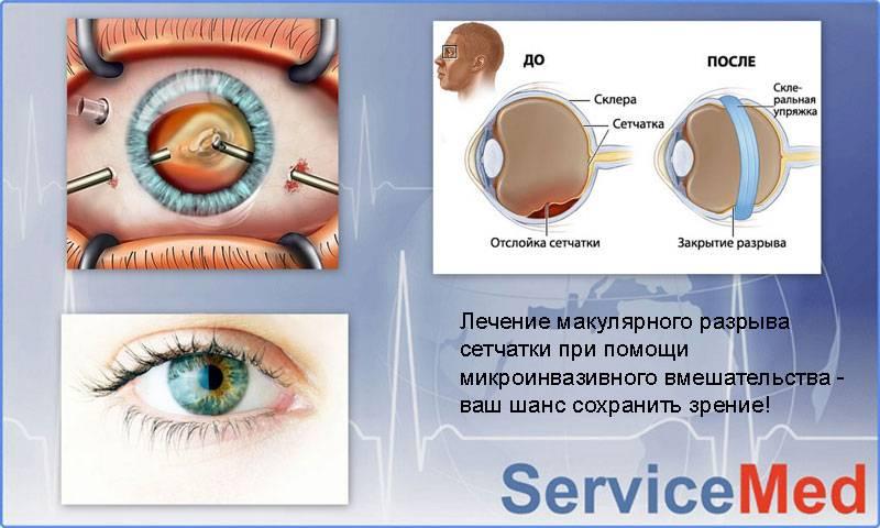 Разрывы сетчатки глаза - симптомы и причины, операция