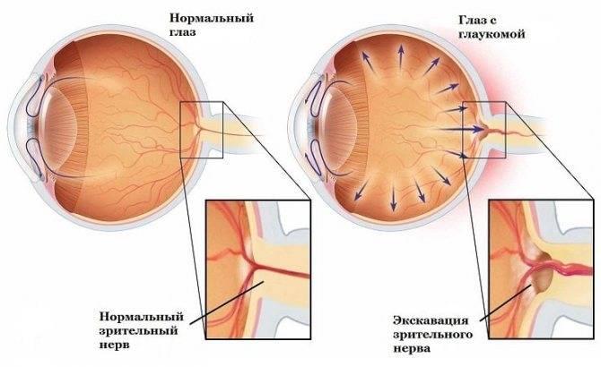 Глаукома: причины, симптомы, лечение