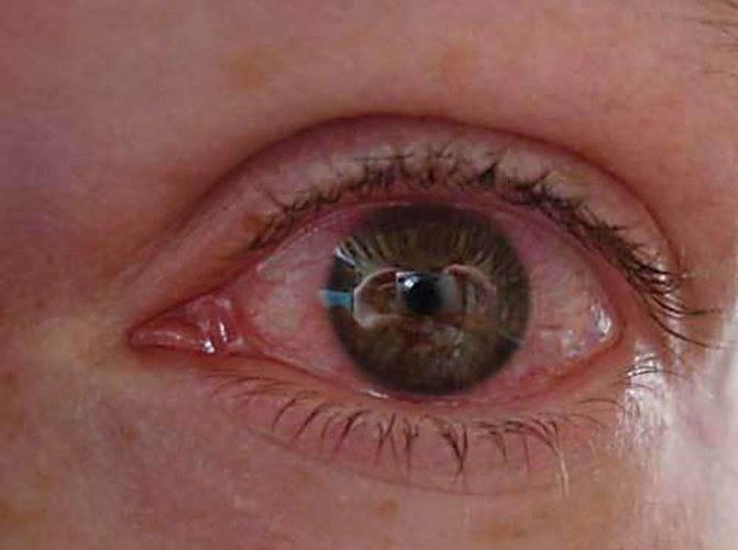 Методы лечения травм глаза и диагностика степени повреждения