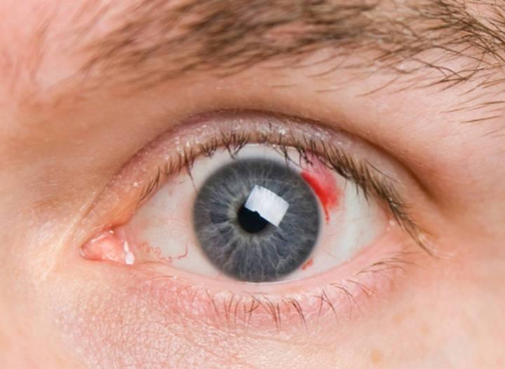 Красное пятно в глазу на белке у взрослого и ребенка: причины, диагностика, лечение покраснений и точек