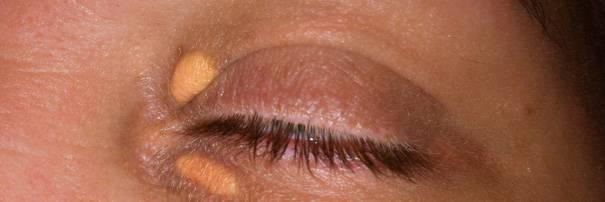 Желтые пятна на веках глаз: причины появления