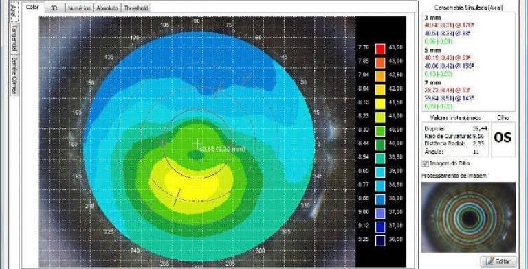 Расшифровка кератометрии: оптические свойства роговицы глаза и их измерение