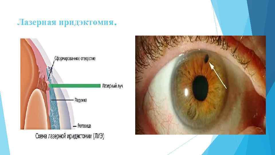 Лиэ – лазерная иридэктомия (иридотомия)