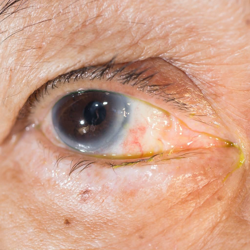Птеригиум: описание, причины и методы лечения