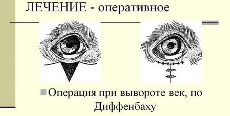 Как вытащить соринку из под верхнего века, что делать если что-то попало в глаз