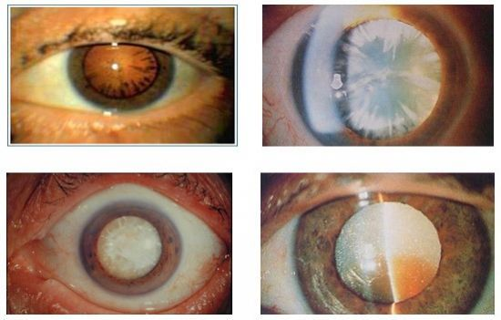 Факосклероз хрусталика глаза причины симптомы лечение - мед портал tvoiamedkarta.ru