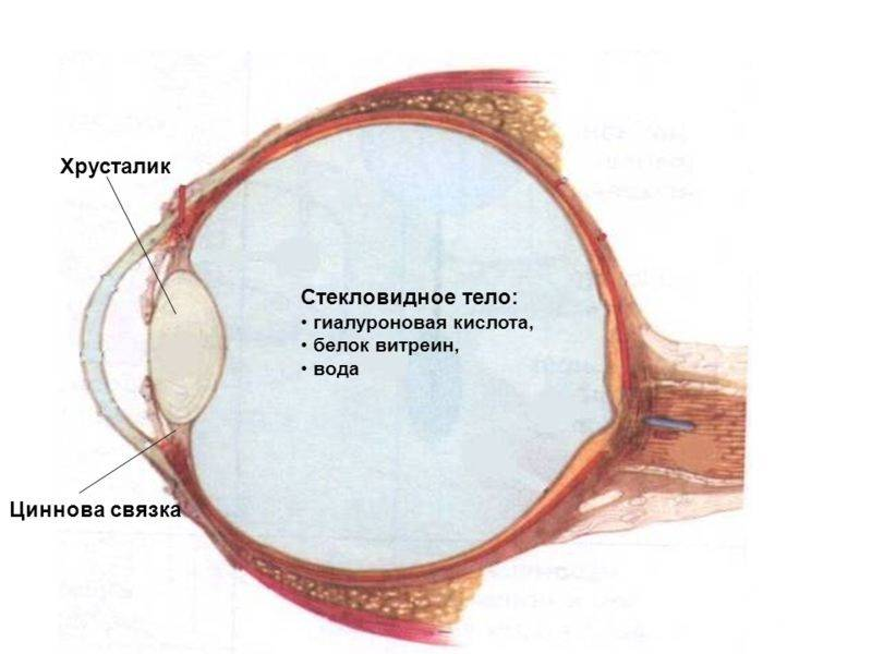 Что такое деструкция стекловидного тела и как лечить?