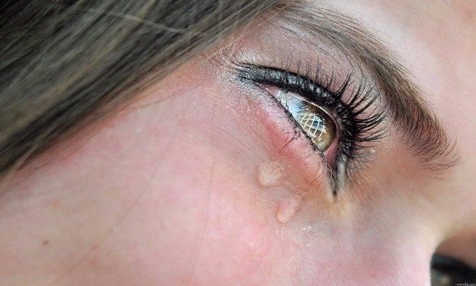 Почему глаза чешутся и слезятся