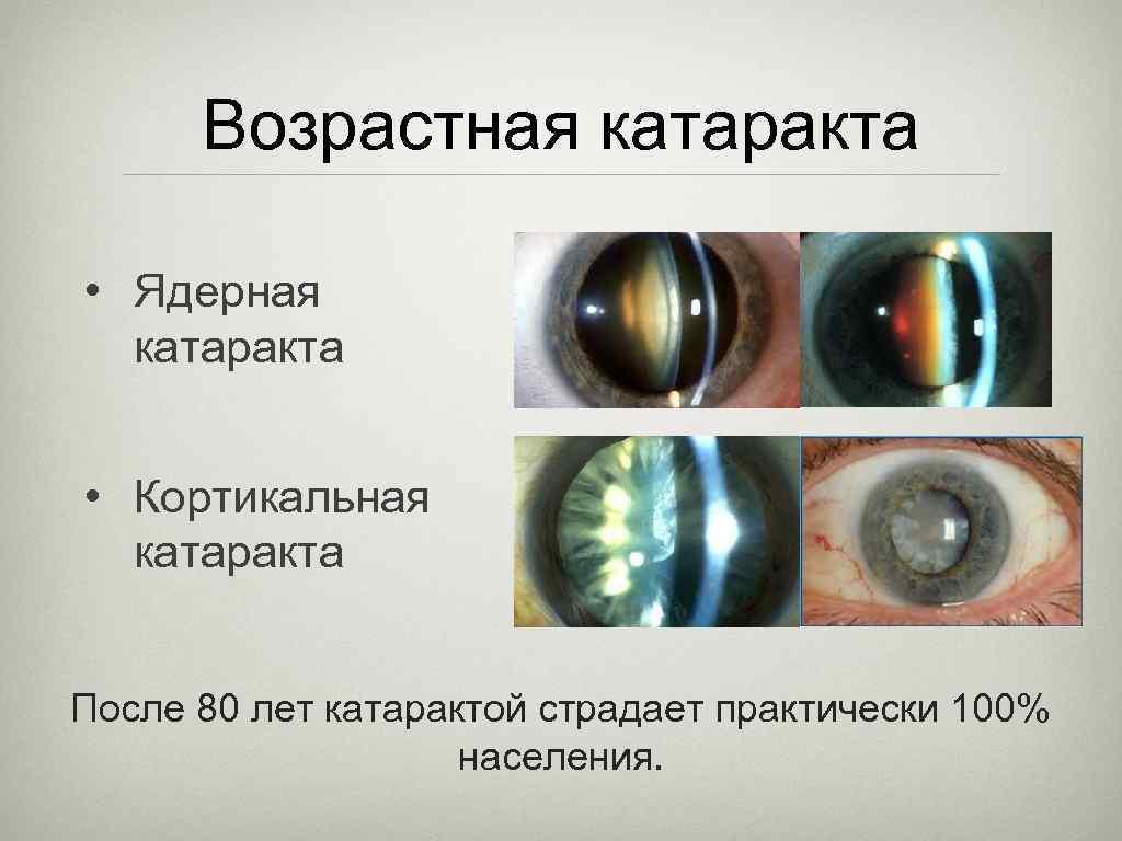 Катаракта - признаки, симптомы и методы лечения