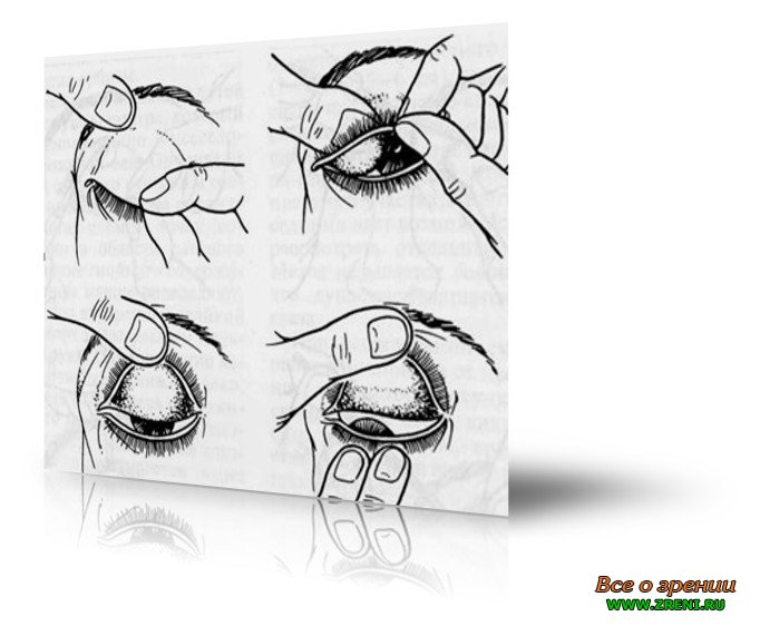 Выворот нижнего века (эктропион глаза) у человека: лечение